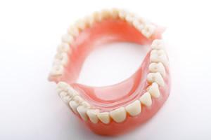 入れ歯 種類 部分